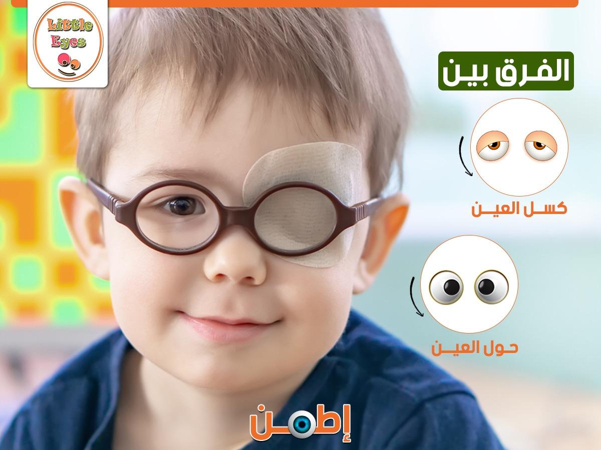 الفرق بين حول العين وكسل العين