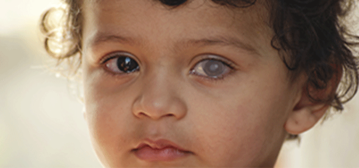 علاج المياه البيضاء للأطفال